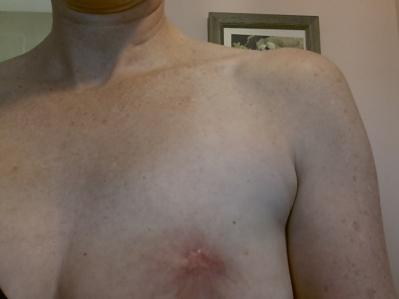 8 weeks healing 051114